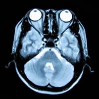脳のMRI写真(横断面)