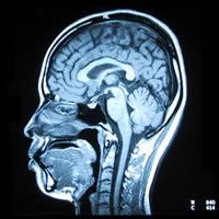 脳のMRI写真(矢断面)
