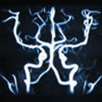 脳のMRI写真(血管)