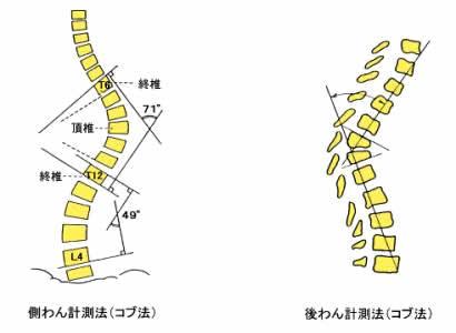 脊柱側わん症検診 | 公益財団法人 兵庫県予防医学協会